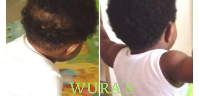 How to Grow out Bald Spots – Babies/Children